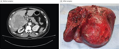 A Large Liver Mass With Acute Hemorrhage | Hepatobiliary
