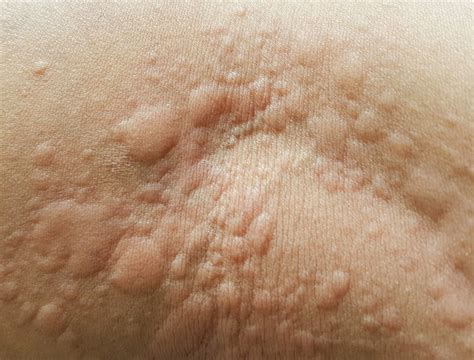 What are hives, the common skin condition that gives you